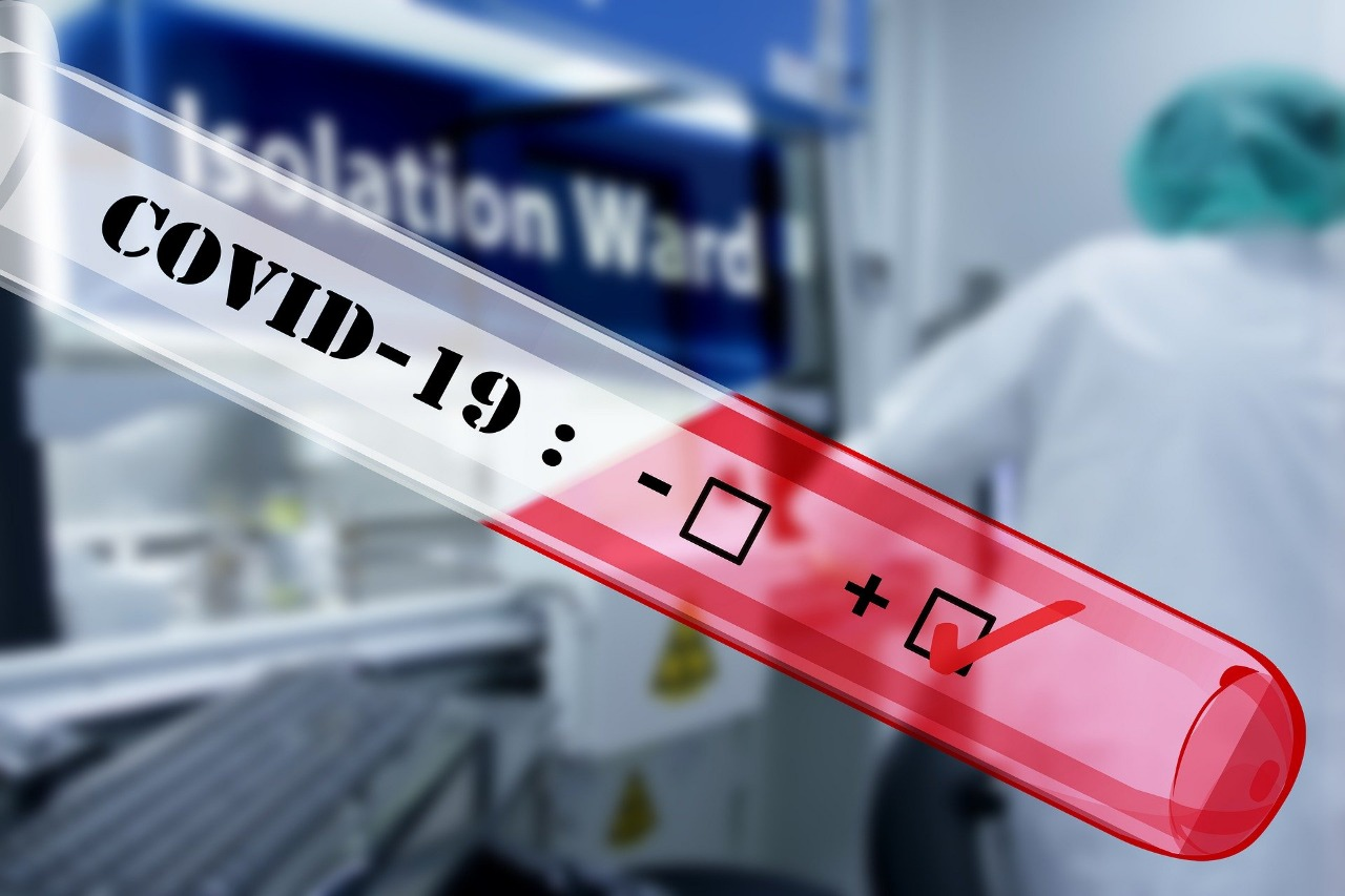 Coronavirus RD: 540 casos confirmados en últimas 24 horas